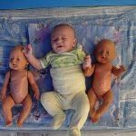 Бесплодие: причины, лечение и профилактика. Заметки йогатерапевта